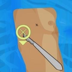 Jogo Cirurgia no Peito